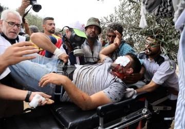 عشرات الإصابات بينها خطرة جرّاء قمع الاحتلال لمسيرات الضفة
