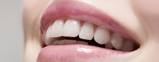 صحة الأسنان شرط أساسي قبل الإقدام على عملية تبييض الأسنان