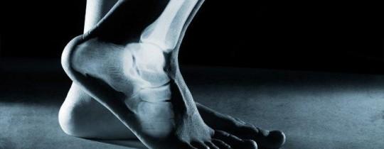 العظام آلام الأقدام.jpeg