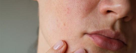 أحد أعراض جفاف البشرة هو الاحمرار واكتساب الجلد اللون الوردي