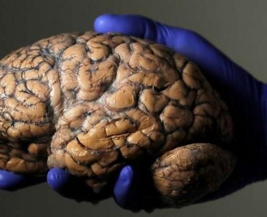 بتقنية 5G.. أول جراحة دماغية على بعد 3 آلاف كم في العالم!