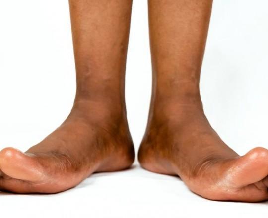 ينصح الأطباء بغسل وتجفيف ما بين أصابع القدمين بالصابون وبحجر الخفاف يوميًا