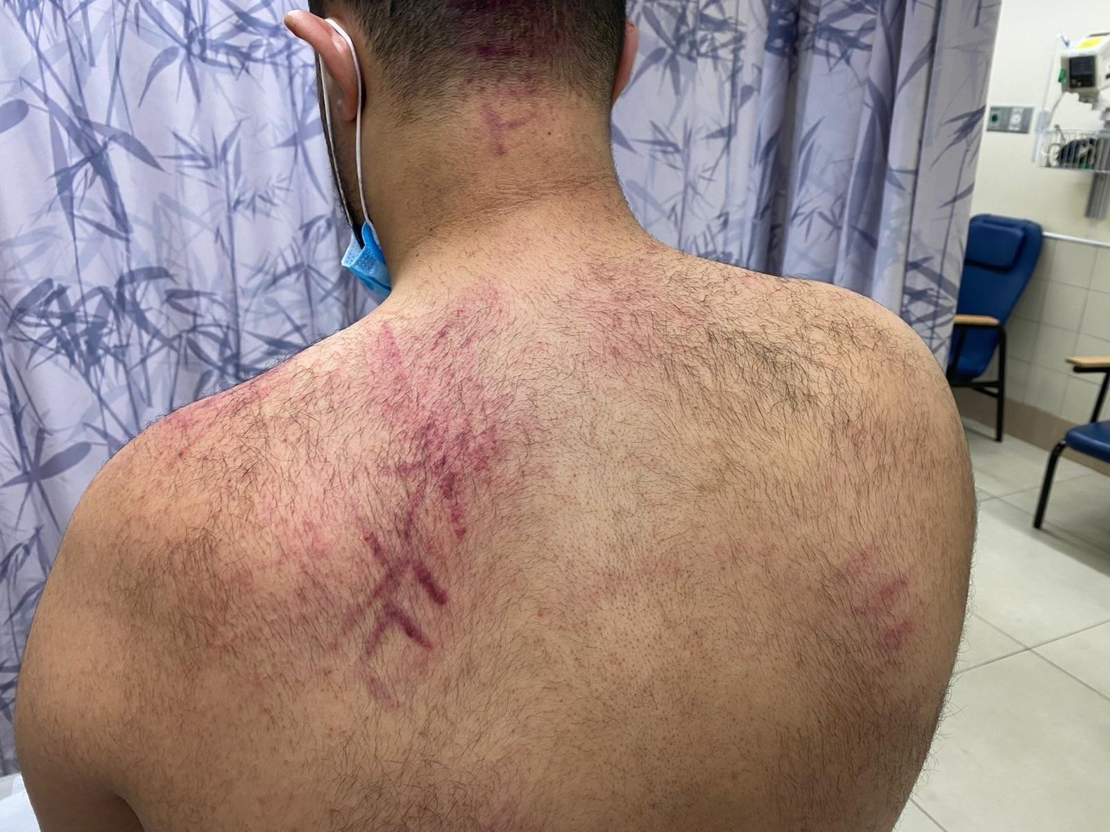 شرطة الاحتلال ومتطرفون يعتدون على متظاهرن عرب في يافا (2).jpg